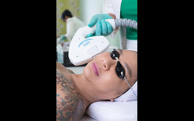 IPL treatment - Dr Made Ita Aesthetic Clinic Bali